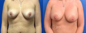Breast Augmentation Before and After Photos - Patient 2a