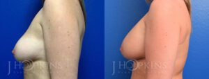 Breast Augmentation Before and After Photos - Patient 2b
