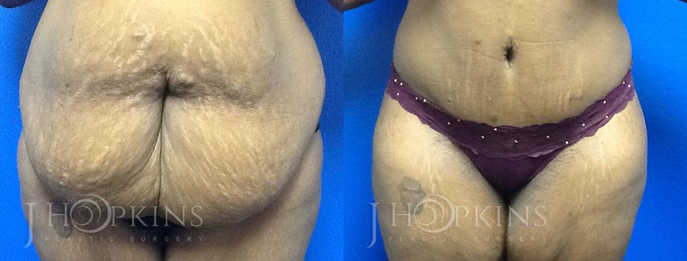 Panniculectomy Before and After Photos - Patient 1A