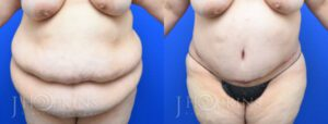 Panniculectomy Before and After Photos - Patient 2A