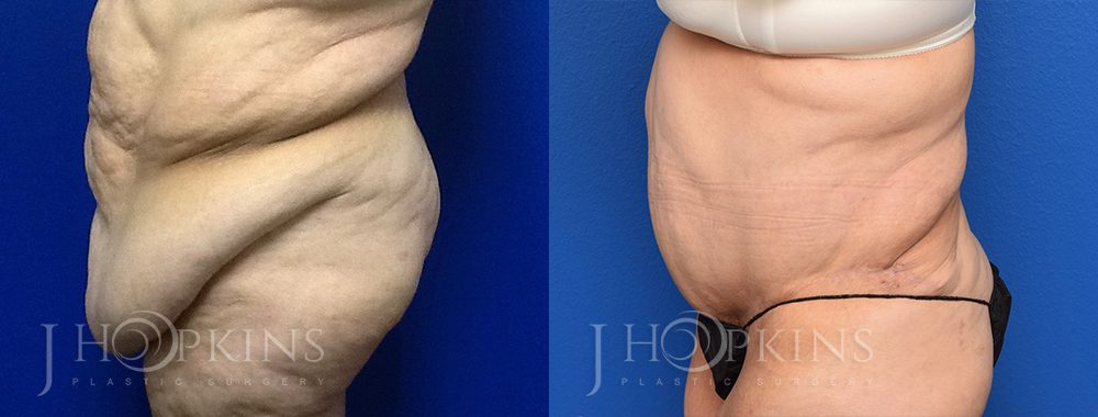Panniculectomy Before and After Photos - Patient 3