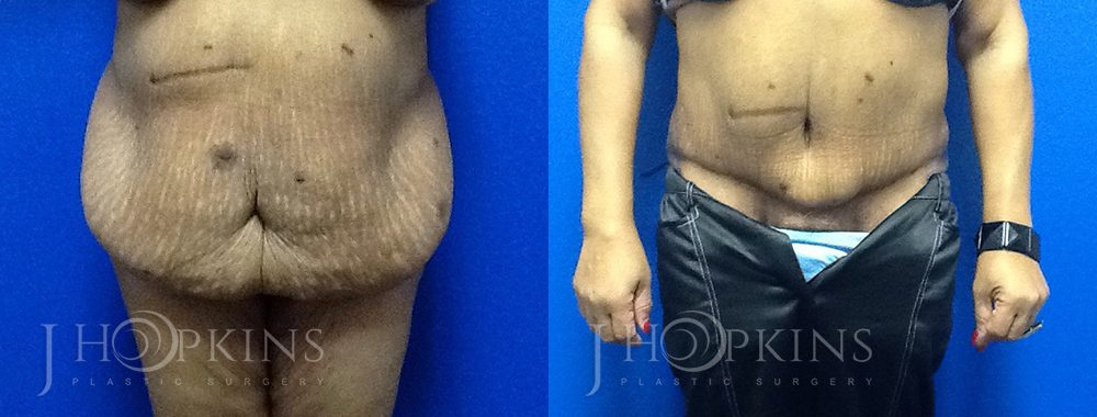 Panniculectomy Before and After Photos - Patient 4