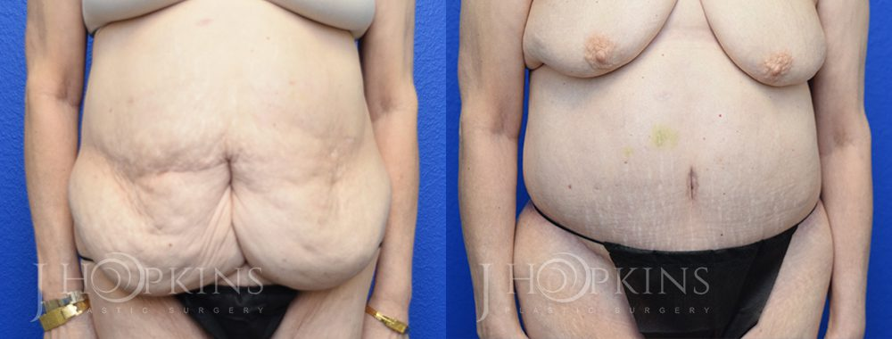 Panniculectomy Before and After Photos - Patient 6A