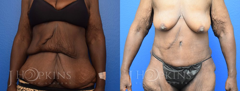 Panniculectomy Before and After Photos - Patient 8A