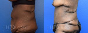 Panniculectomy Before and After Photos - Patient 8B