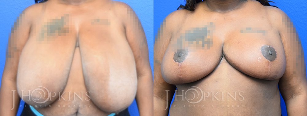 Patient 6 Before and After Breast Reduction Front View
