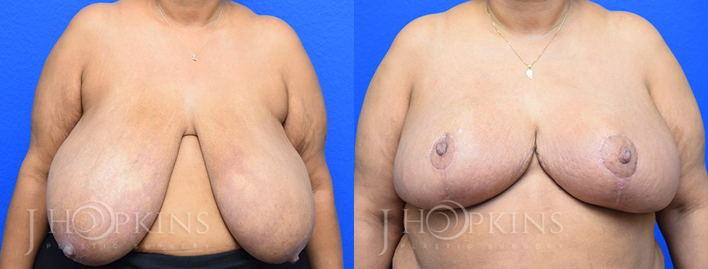 Patient 7 Before and After Breast Reduction Front View