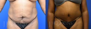 Patient 3 Before and After Tummy Tuck Front View