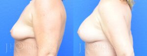 Breast Augmentation Before and After Photos - Patient 3c