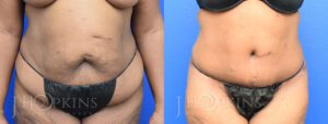 Panniculectomy Before and After Photos - Patient 10A