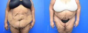 Panniculectomy Before and After Photos - Patient 11B