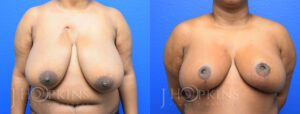 Patient 9 Before and After Breast Reduction Front View