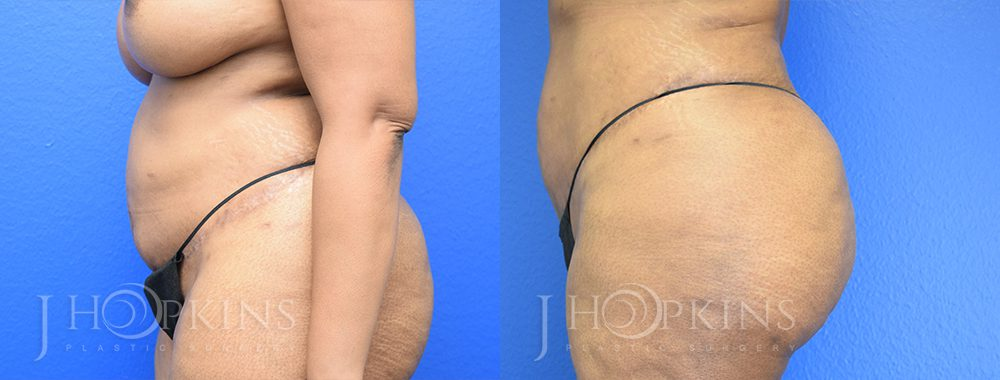 Liposuction Before and After Patient 4a