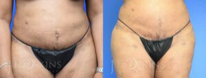 Liposuction Before and After Patient 4b