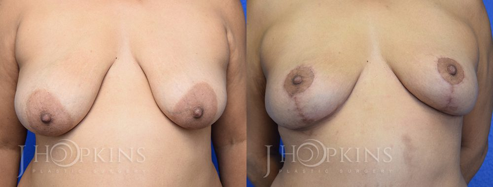 Breast Lift Patient 2b
