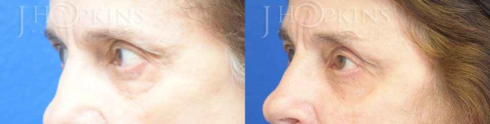Blepharoplasty Before and After Photos - Patient 3A