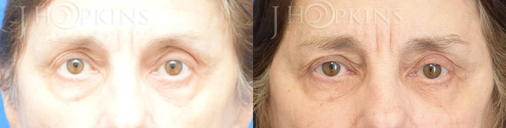 Blepharoplasty Before and After Photos - Patient 3B