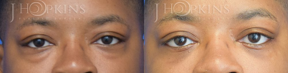 Patient 5B Before and After Blepharoplasty Front View