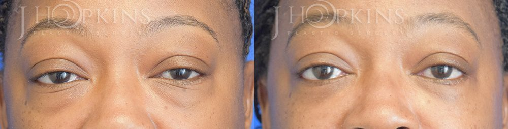 Patient 6 Before and After Blepharoplasty Front View