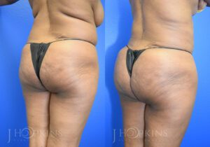 Patient 4 Before and After Fat Transfer Back Right Angle View