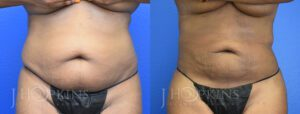 Patient 4 Before and After Fat Transfer Front View