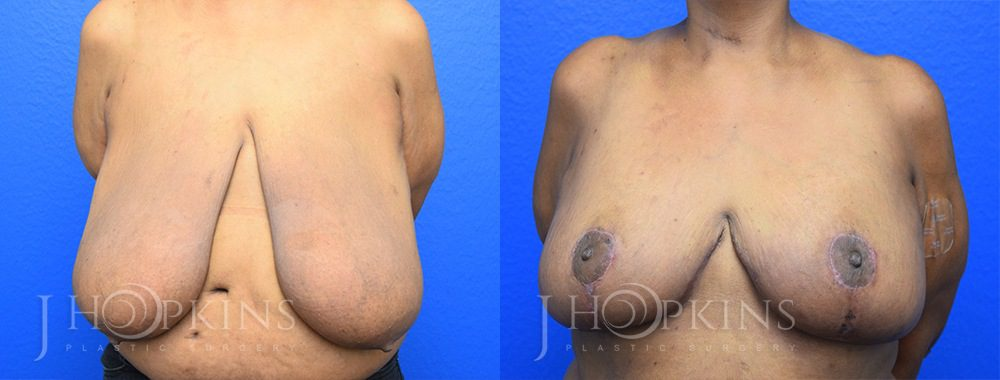 Patient 13 Before and After Breast Reduction Front View