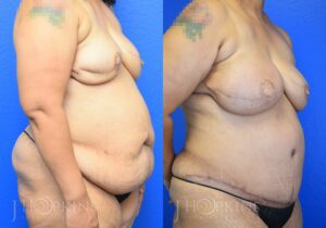 Patient 1 Before and After Reconstruction Right Side Angle View