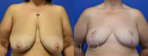 Patient 11 Before and After Breast Reduction Front View