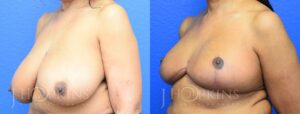 Patient 12 Before and After Breast Reduction Left Side Angle View