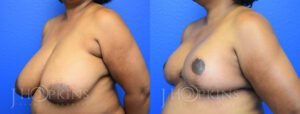 Patient 2 Before and After Side Panniculectomy Left Side Angle View