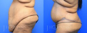 Patient 13 Before and After Panniculectomy Left Side View