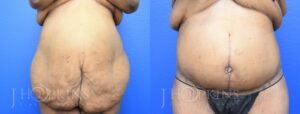 Patient 1b Before and After Panniculectomy