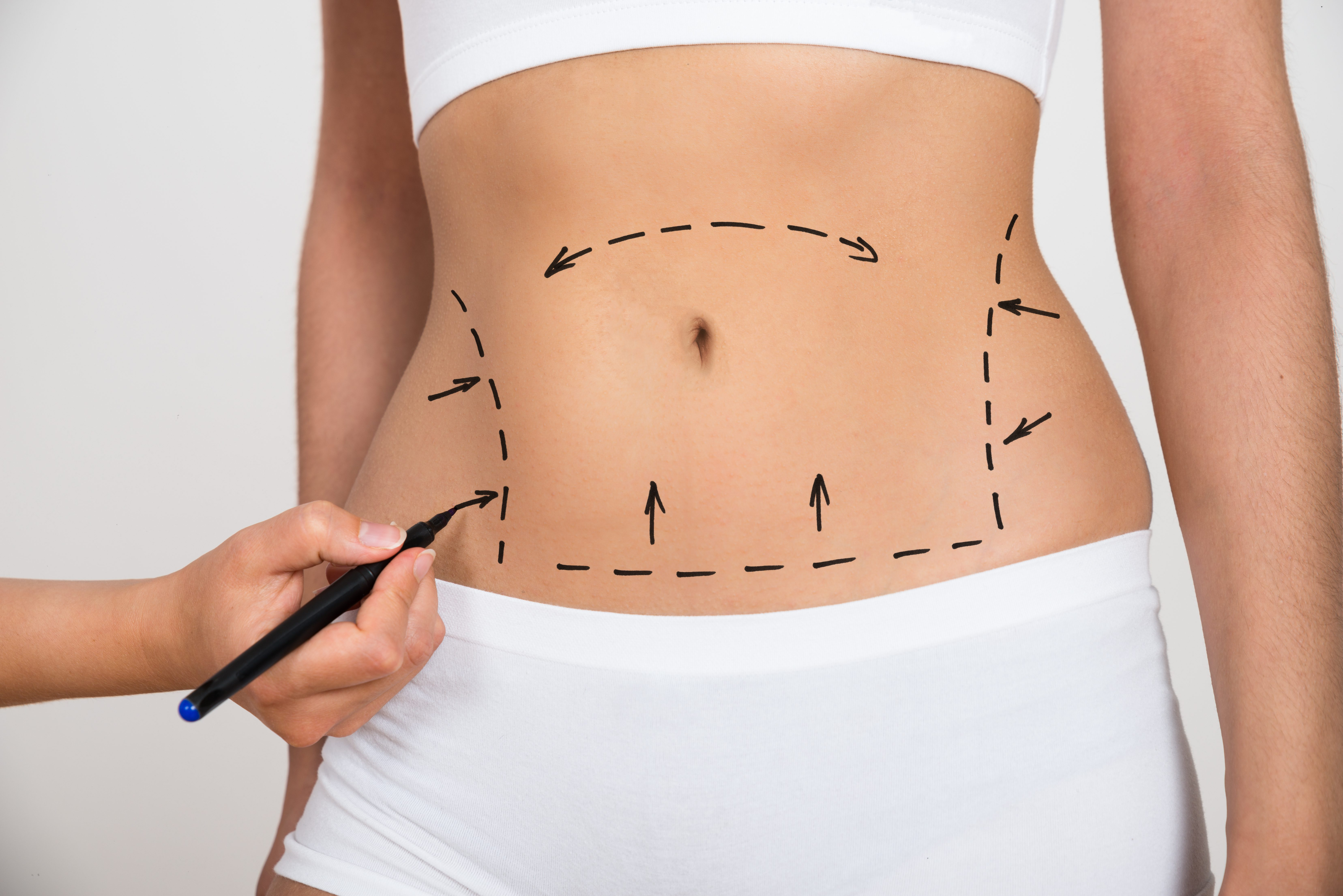 Person Hand Drawing Lines On A Woman's Abdomen As Marks For Abdominal Cellulite Correction