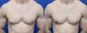 Patient 2 Before and After Male Gynecomastia Front View