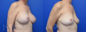 Patient 1 Before and After Breast Implant Removal Right Side Angle View