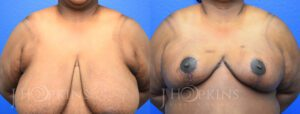 Patient 18 Before and After Breast Reduction Front View