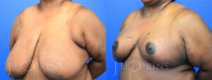 Patient 18 Before and After Breast Reduction Left Side Angle View