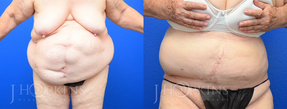 Patient 15 Before and After Panniculectomy Front View