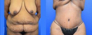 Patient 16 Before and After Panniculectomy Front View