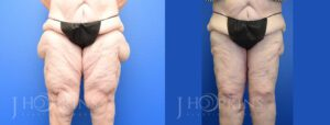 Patient 2 Before and After Thighplasty Front View