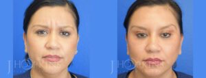 hopkins-dallas-botox-patient-2-2