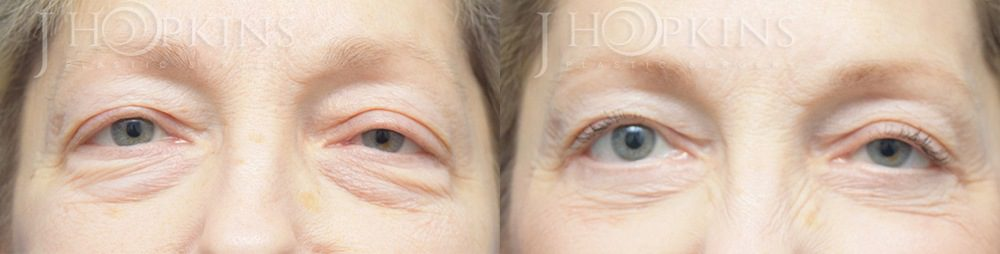 Blepharoplasty-Before-and-After-Photos-Patient-1A