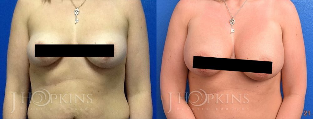 Breast-Augmentation-Before-and-After-Photos-Patient-2a-2_Censored2