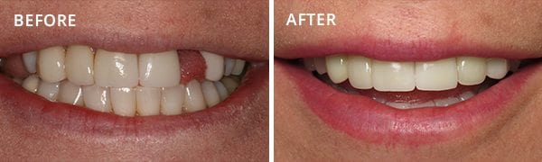 Dental Implants San Diego Patient 2
