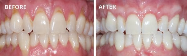 gum-grafting-before-and-after-7
