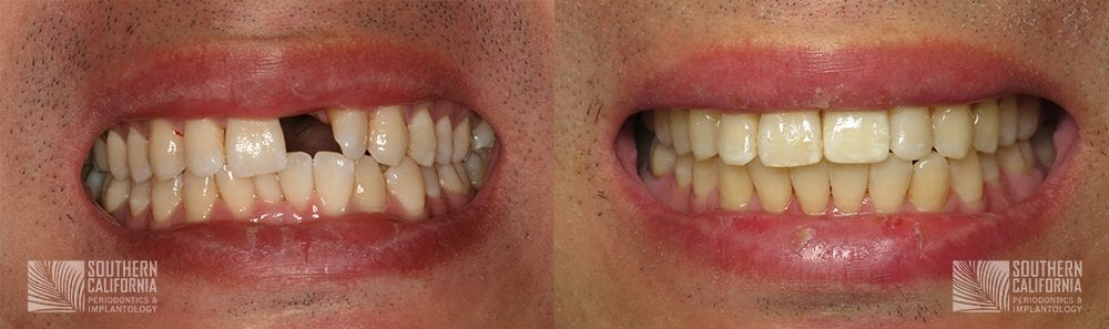 Before and After Dental Implants Patient 1