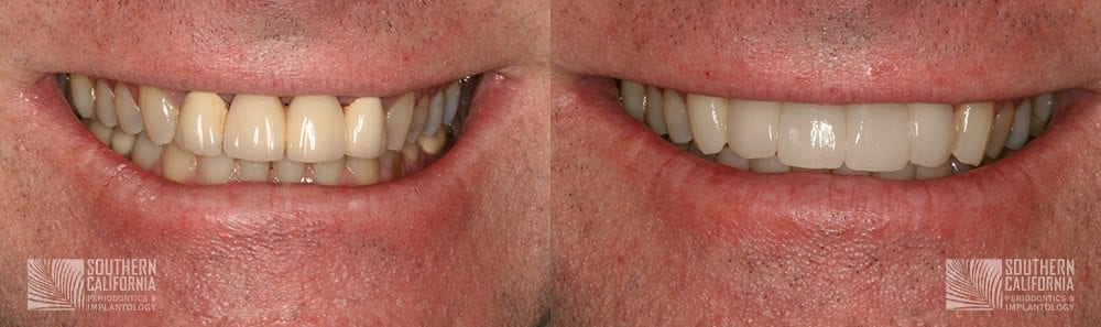 Before and After Dental Implants Patient 5a