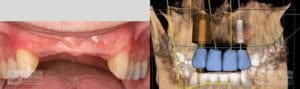 Before and After Dental Implants Patient 5c