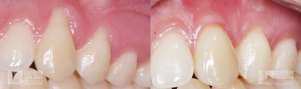 Before and After Gum Graft Patient 1