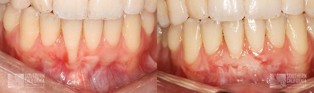 Before and After Gum Graft Patient 2